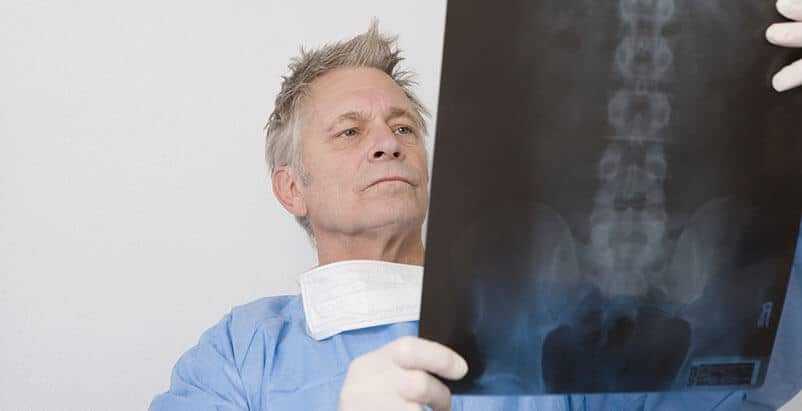 Chicago Spinal Cord Injury Attorneys