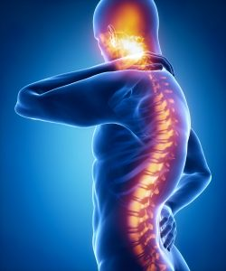 The Costs of Spinal Cord Injuries