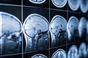 Scientists Warn Brain Damage Possible in Patients with Coronavirus